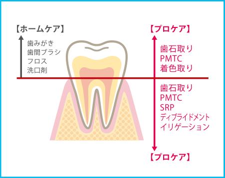 メンテナンス(予防) | 四郷デンタルクリニックは愛知県豊田市四郷町の歯科医院です
